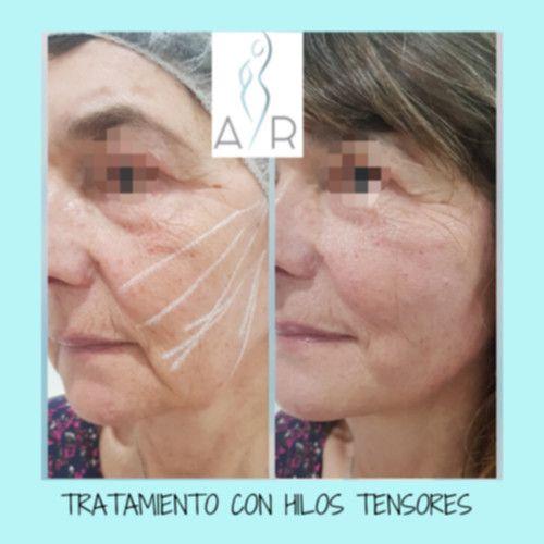Antes y después tratamiento con hilos tensores