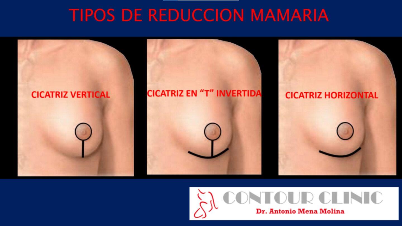 Tipos de reducción mamaria