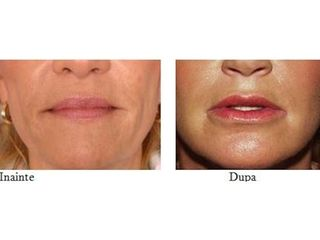 Aumento de labios - Dra. Banacu Luminita
