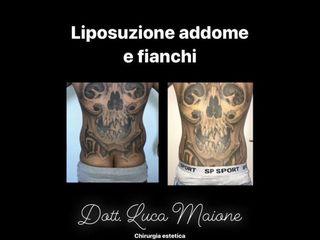 Liposuzione - Dott. Luca Maione