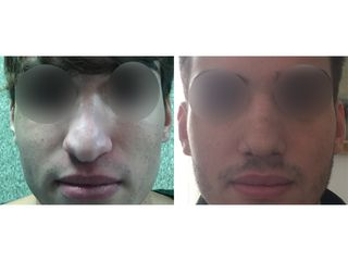 Rinoplastica - Dott. Carlo Carli-Chirurgo Plastico