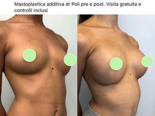 Mastoplastica additiva - Dott. Alberto Poli Cliniche Nova Genesis