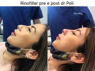 Rinofiller - Dott. Alberto Poli Cliniche Nova Genesis