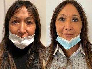 Lifting viso - Dott. Alberto Poli Cliniche Nova Genesis