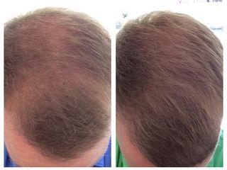 PRP capelli prima e dopo