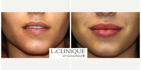 Filler labbra - LaCLINIQUE of Switzerland®