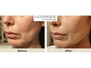 Liposuzione - LaCLINIQUE of Switzerland®