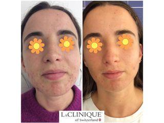 Acne - LaCLINIQUE of Switzerland®