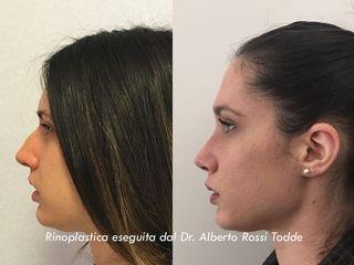 Rinoplastica prima e dopo
