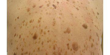 Queratosis Seborreica: causas y tratamientos