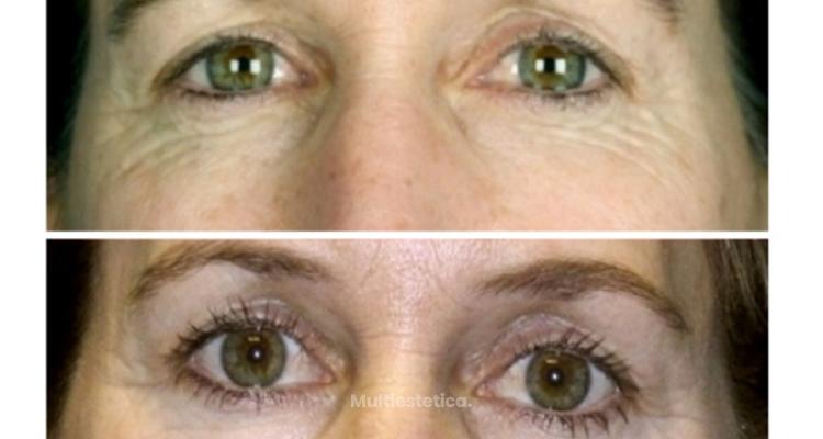 Plasma Skin Regeneration: rejuvenece la piel sin agresión