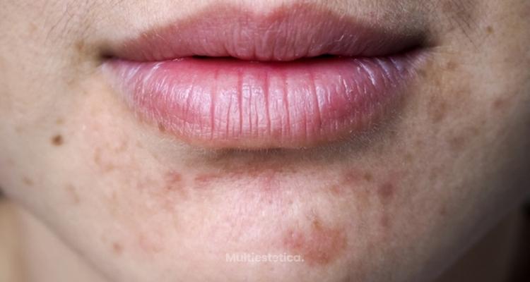 Cicatrices y manchas post-acné: ¿Cómo eliminarlas?