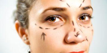 Ritidectomía, estiramiento o lifting facial