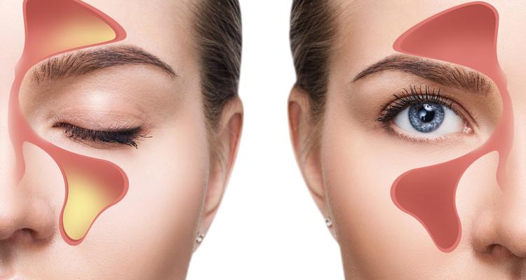 Septoplastia para corregir la desviación del tabique nasal