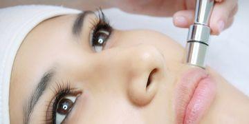 Microdermoabrasión: la técnica que renueva la piel
