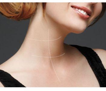 Cómo rejuvenecer el cuello con o sin cirurgía
