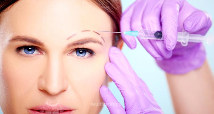 10 Mitos sobre el botox