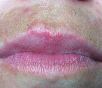 La hiperpigmentación del labio superior: causas y remedios