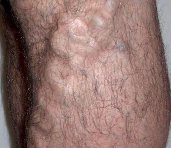 Quitar las varices sin cirugía, el tratamiento Vena Foam