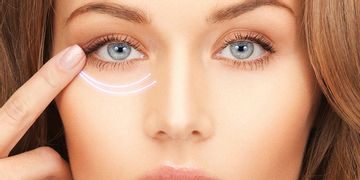 Ojeras: nueva solución con ácido hialurónico