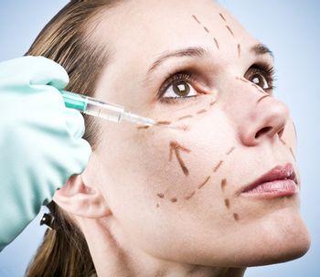 La bioplastia: el lifting sin cirugía