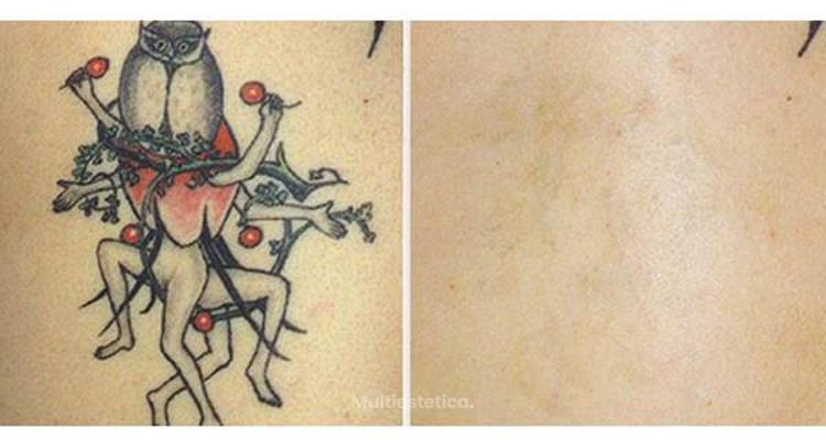 Cómo eliminar los tatuajes con el Láser Q-switched
