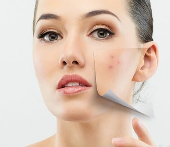 El láser que elimina tatuajes podría reducir las cicatrices del acné