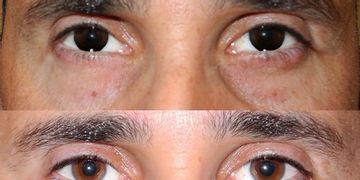 Técnica 'Eyes and Circles' sin cirugia