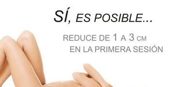 Lipoláser: Reduce de 1 a 3 cm por sesión