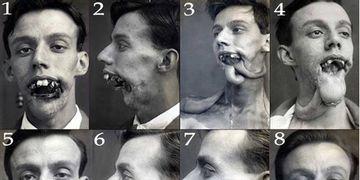 La I Guerra Mundial: punto crucial para la cirugía plástica
