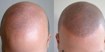 La micropigmentación capilar