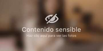 El Hospital Vithas Parque San Antonio en Málaga crea un tratamiento para eliminar las varices sin dolor