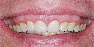 El botox puede resolver la sonrisa gingival
