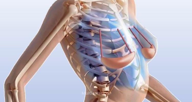 Clínicas Dorsia implanta el primer 'sujetador interno' en España