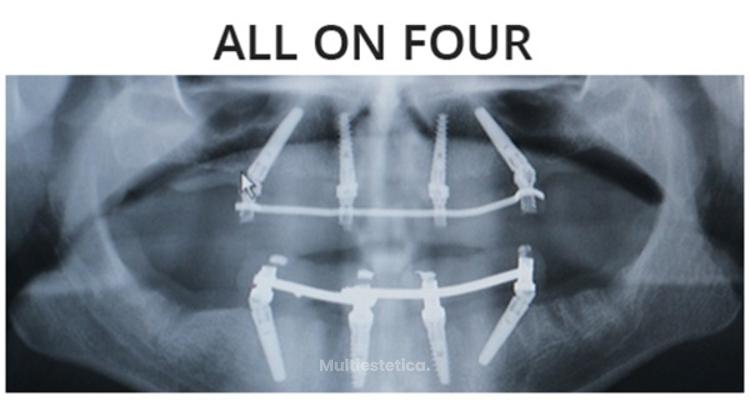 Tratamientos avanzados en implantología dental