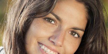 Ortodoncia pasados los 30, ¿por qué no?