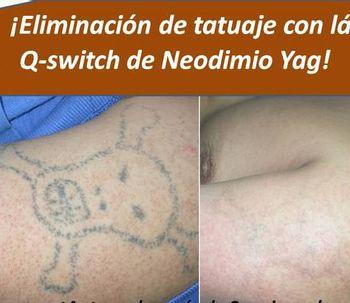 Eliminación de tatuajes de cualquier color
