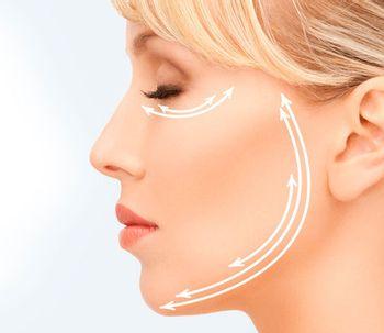 Estiramiento facial mediante hilos tensores