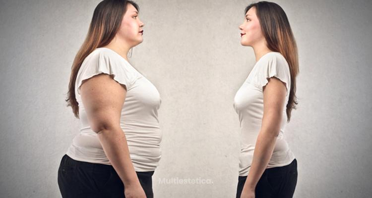 Balón intragástrico, una solución al sobrepeso