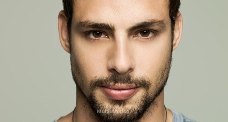 Una barba perfecta gracias a los microinjertos