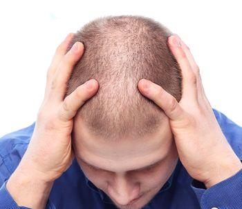 Si te preocupa la pérdida de cabello... ¡presta atención!