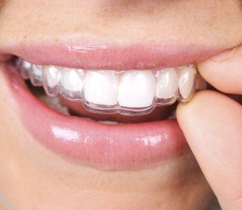 Llega la moda de la ortodoncia invisible