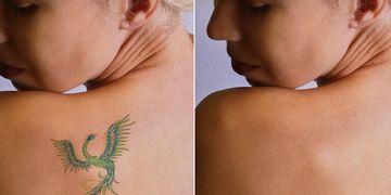 ¿Algún tatuaje que quieras hacer desaparecer? ¡Es posible!