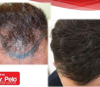 Injerto capilar con la técnica FUE con implanters: Novedoso procedimiento de trasplante de pelo