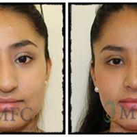 ¿Me cambiará la cara tras la cirugía de rinoplastia?