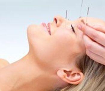 Lifting con acupuntura