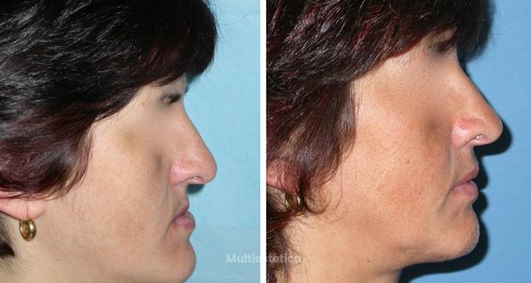 El rol de la cirugía maxilofacial en cirugía estética