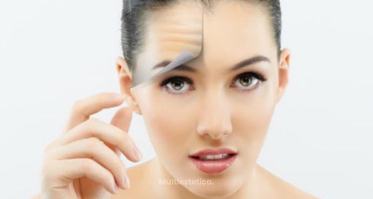 Verano y Botox: un tándem que te interesa