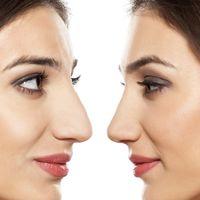 Corrige la forma y el tamaño de tu nariz con la rinoplastia