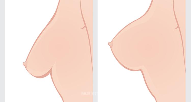 Guía útil sobre la mastopexia, la elevación de la mama